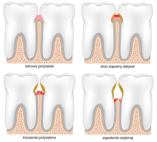 leczenie chorób zębów przyzębia periodontologia