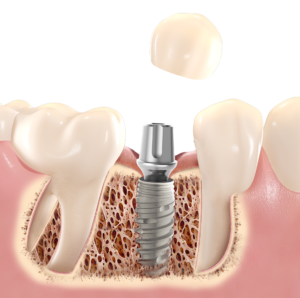 I_lost_a_tooth_01-300x298