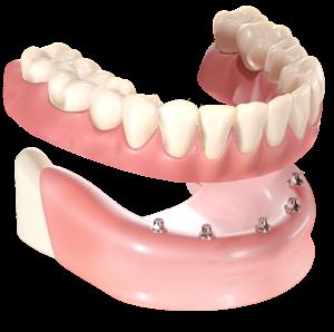 I_lost_all_my_teeth_01-300x298