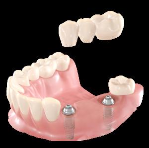 I_lost_several_teeth_01-300x298